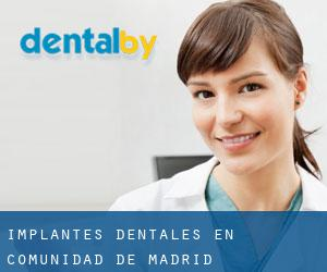 Implantes Dentales en Comunidad de Madrid