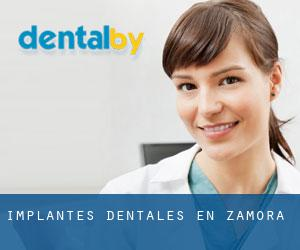 Implantes Dentales en Zamora